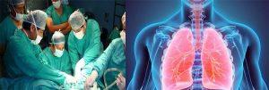 operación del pulmón en Huaraz